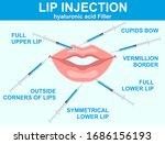 lip injection hyaluronic acid...   Shutterstock .eps vector #1686156193
