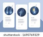 set hair follicle treatment .... | Shutterstock .eps vector #1690769329