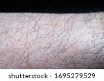A man's left lower arm skin...