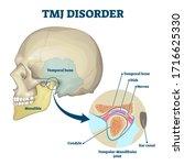 Tmj Disorder Vector...