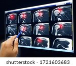 Hand Doctor Point Mri Of...