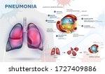 pneumonia explained info poster ... | Shutterstock .eps vector #1727409886