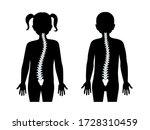 children scoliosis flat vector... | Shutterstock .eps vector #1728310459