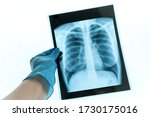 Medical Doctor Looking At X Ray ...