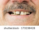 man showing his teeth  mouth... | Shutterstock . vector #173238428