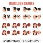 hair loss stages vector... | Shutterstock .eps vector #1739343899