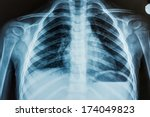 view of a child x ray film ... | Shutterstock . vector #174049823