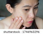 Small photo of Young Asian woman having acne inflammation (Papule and Pustule) on her face and she applying acne cream on her face for treat. Conceptual of problems on woman skin.