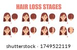 hair loss stages vector... | Shutterstock .eps vector #1749522119