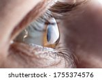 Small photo of Macro picture of the eye. The cornea in the form of a cone, the disease of the eye keratoconus. Astigmatism.
