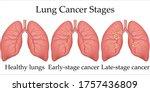 vector medical illustration of...   Shutterstock .eps vector #1757436809