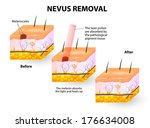 nevus removal | Shutterstock . vector #176634008