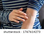Small photo of Female hands applying ointment on crook of arm / elbow. Apply a soothing cream in the treatment and hydration of red itchy skin. Concept of skincare, eczema, allergy rash and other skin disease