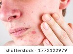 Part Of The Face With Acne And...