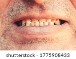 Smiling Mouth Of A Man With...