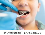 Small photo of Closeup of orthodontist examining boy wearing braces with dental mirror
