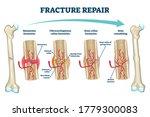 fracture repair as educational... | Shutterstock .eps vector #1779300083