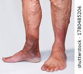 """Small photo of People suffering from varicose veins often come to the phlebologists office, too late - at the moment when visible signs have already appeared on their legs: swelling, swollen veins, """"stars""""."""