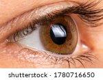 Small photo of Macro eye photo. Keratoconus - eye disease, thinning of the cornea in the form of a cone. The cornea plastic