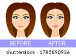 before after lip correction....   Shutterstock .eps vector #1785890936