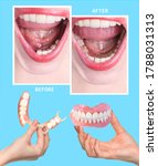 Dental Rehabilitation With...
