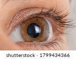 Small photo of Macro eye photo. Keratoconus 2 degree - eye disease, thinning of the cornea in the form of a cone. The cornea plastic