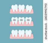 stages of orthodontic treatment ...   Shutterstock .eps vector #1803990793