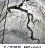 Coronary Angiogram Shown...