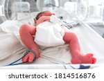 Small photo of Close up of a foot of a premature newborn with a premature infant pulse oximeter on his foot, placed in a premature newborn incubator. Neonatal intensive care unit