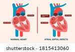 asd vsd afib exam hole leak... | Shutterstock .eps vector #1815413060