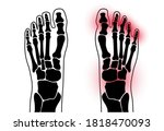 X Ray Of Normal Ankle And Pain...