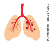 human lungs  schematic color...   Shutterstock .eps vector #1819171010