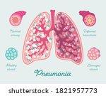 pneumonia in lung of human.... | Shutterstock .eps vector #1821957773