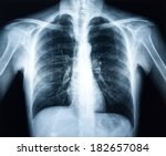 xray of a human torax isolated | Shutterstock . vector #182657084