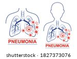 pneumonia disease icon set.... | Shutterstock .eps vector #1827373076