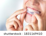 Woman Wearing Orthodontic...