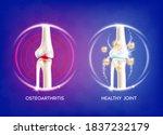 Arthritis Knee Joint. Pain In...