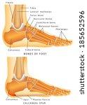 heel spur. bones of the foot... | Shutterstock .eps vector #185652596
