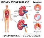 kidney stones disease and... | Shutterstock .eps vector #1864706536
