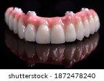 Beautiful Upper Teeth Ceramic...