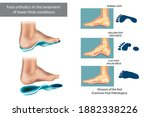 Diseases Of The Foot. Common...
