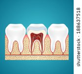 two healthy human tooth and one ... | Shutterstock . vector #188637518