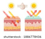 uv skin protection. damaged... | Shutterstock .eps vector #1886778436