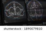 brain scan screen. device scans ...
