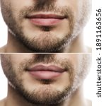 Result Of Lip Augmentation....