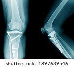 X Ray Image Of Knee  Tibia...