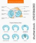 vector illustration. meniscus... | Shutterstock .eps vector #1903586083