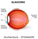 alteration,anatomy,aqueous,blocked,body,care,condition,cornea,cross,damage,defect,detachment,diagram,disease,drainage