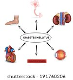 diabetes mellitus affected... | Shutterstock .eps vector #191760206