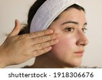 Small photo of Woman looking at her face. A person with sensitive skin and rosacea.